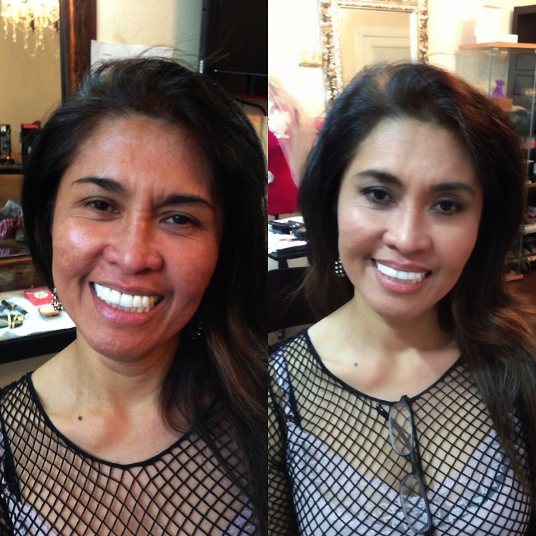 before after for redness skin